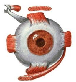 斜视的原理_什么是斜视 内斜视 外斜视 斜视的症状有哪些